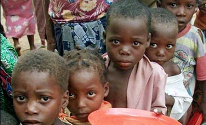 File photo: Malnourished children