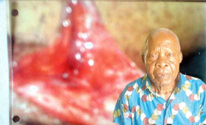 The injured part and Mr Okpara father of the injured
